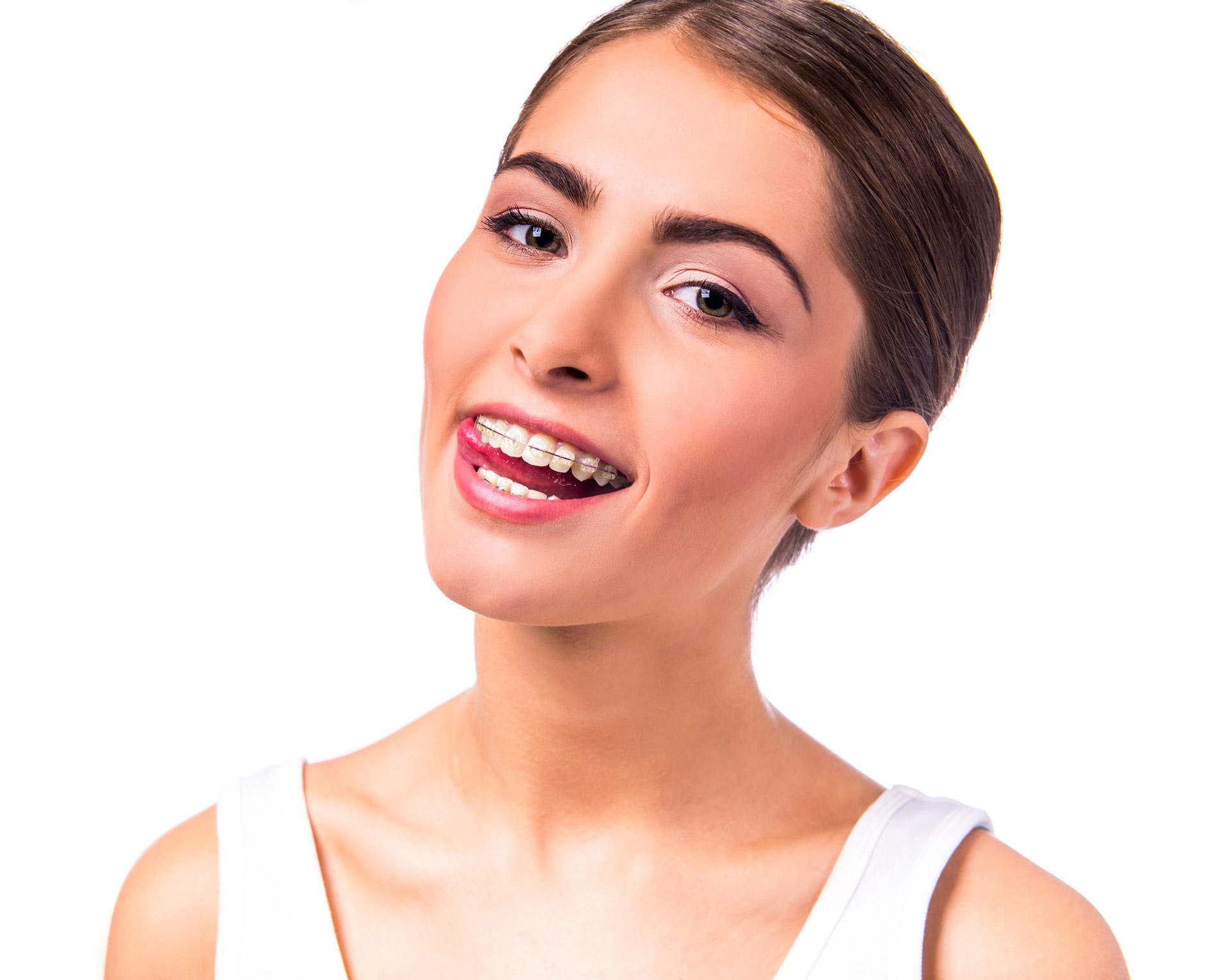 ortodonzia full